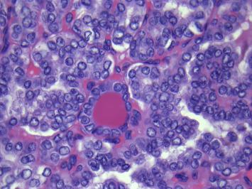 Léčba nádorů štítné žlázy