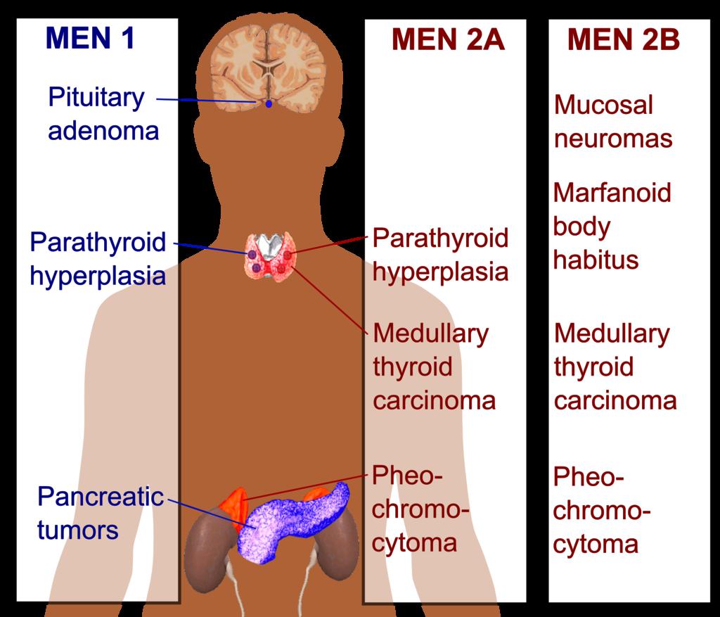 Mnohočetná endokrinní neoplázie (tzv. MEN syndrom)
