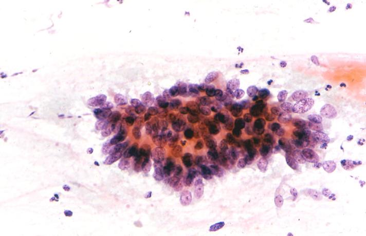 Optimální léčebný postup v léčbě nízkorizikového karcinomu štítné žlázy